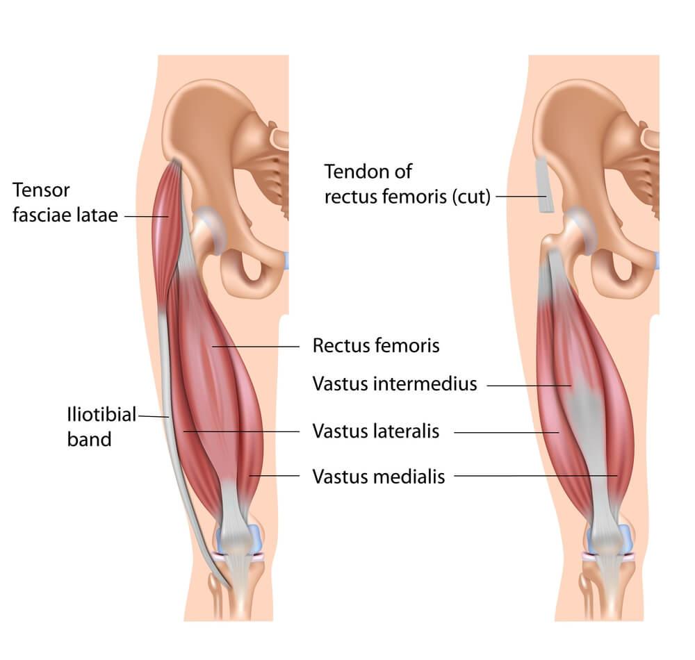 大腿四頭筋の解剖図